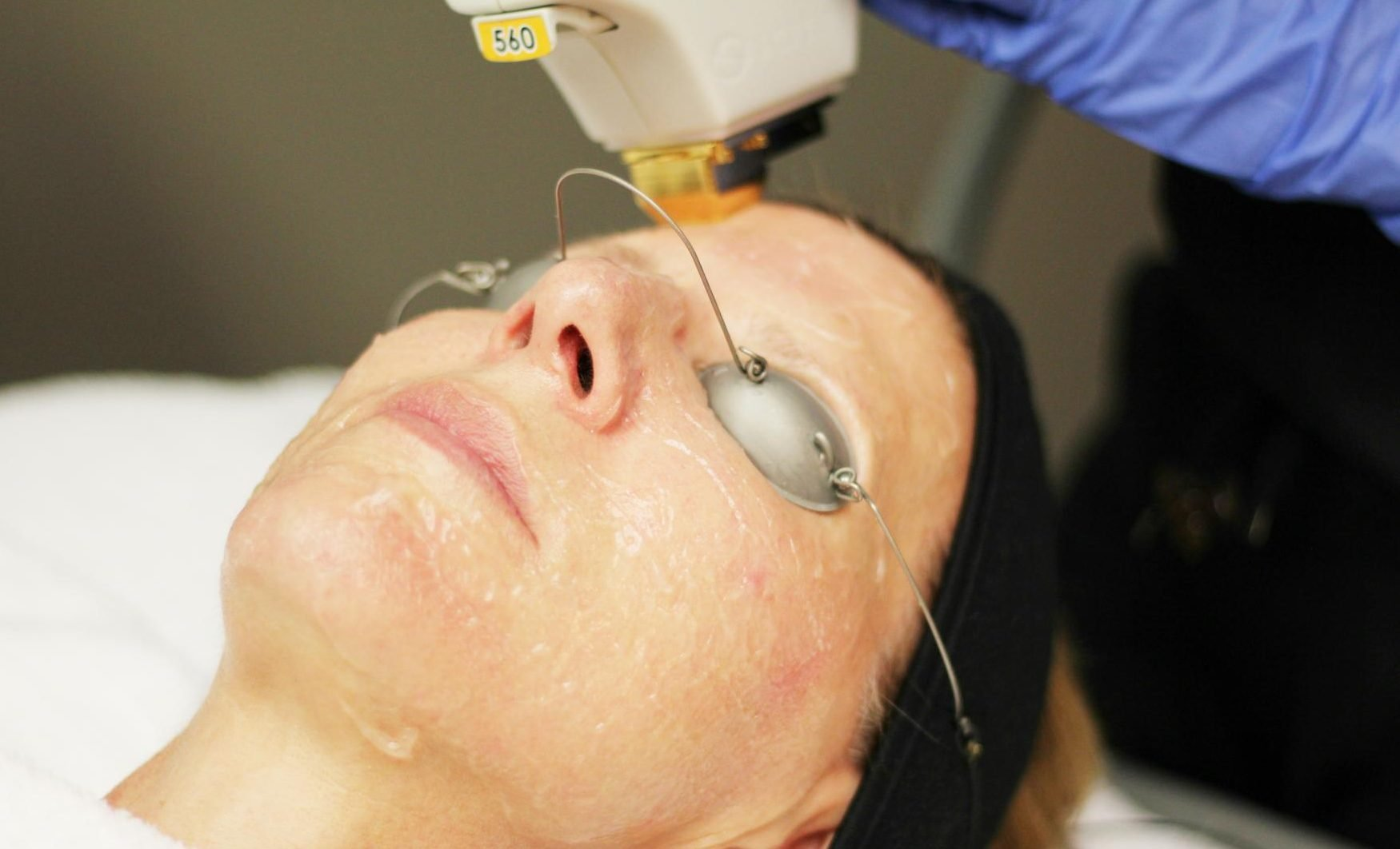 BBL Anti-Aging Laser Skin Treatment | Your Wellness Center
