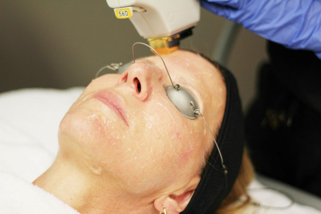BBL Acne Treatments-Laser Treatment