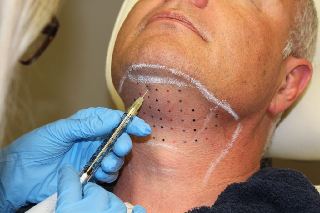 Kybella Double Chin Treatment Your Wellness Center