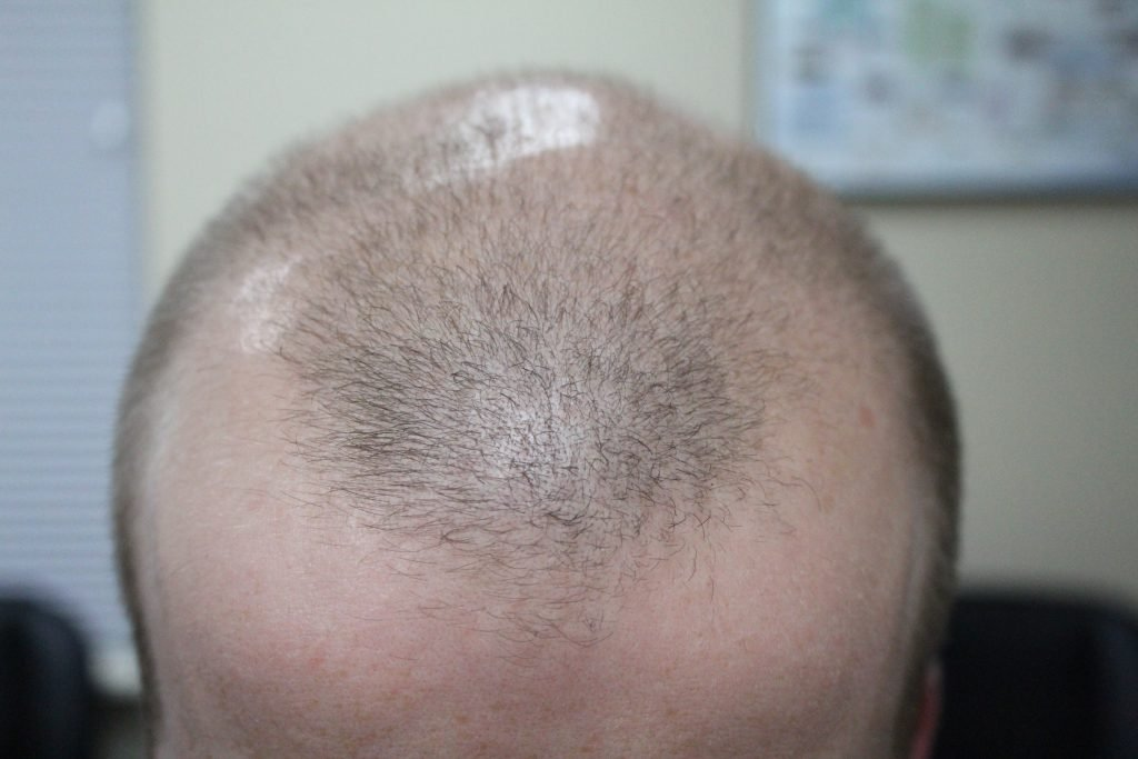 Hair Loss Treatment for Men and Women | Your Wellness Center
