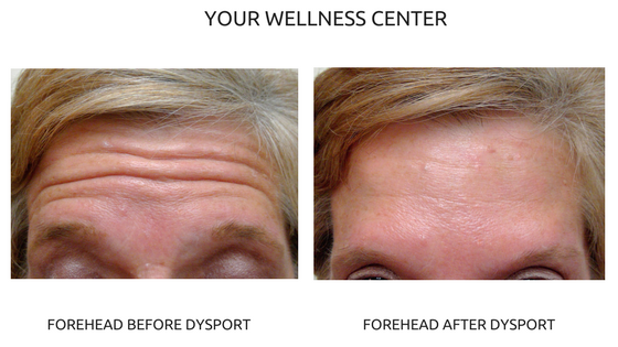 Debunking the Top 4 Botox and Dysport Myths | Your Wellness