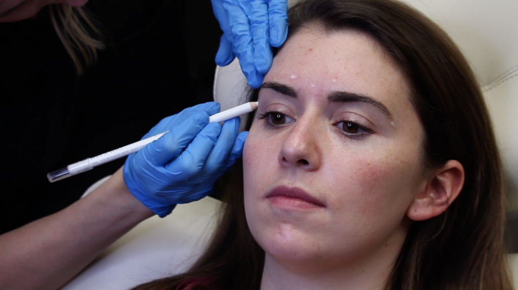 4 Things to Expect for First Time Botox Injections