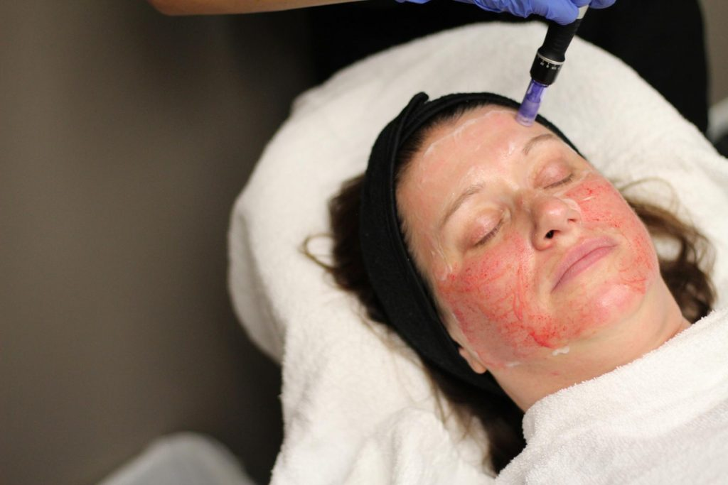 5 Ways Microneedling Clears Your Skin
