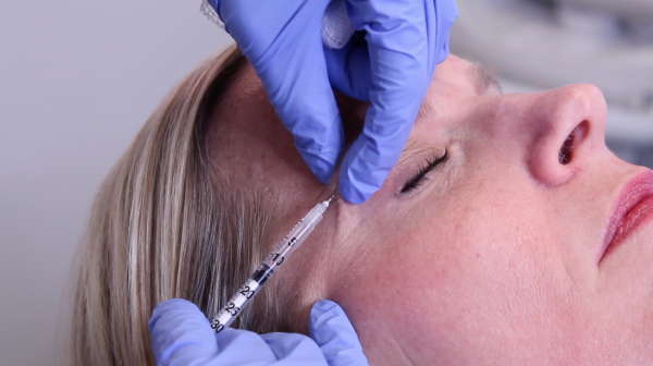 Is Botox Safe? (And Other First-Time Questions)