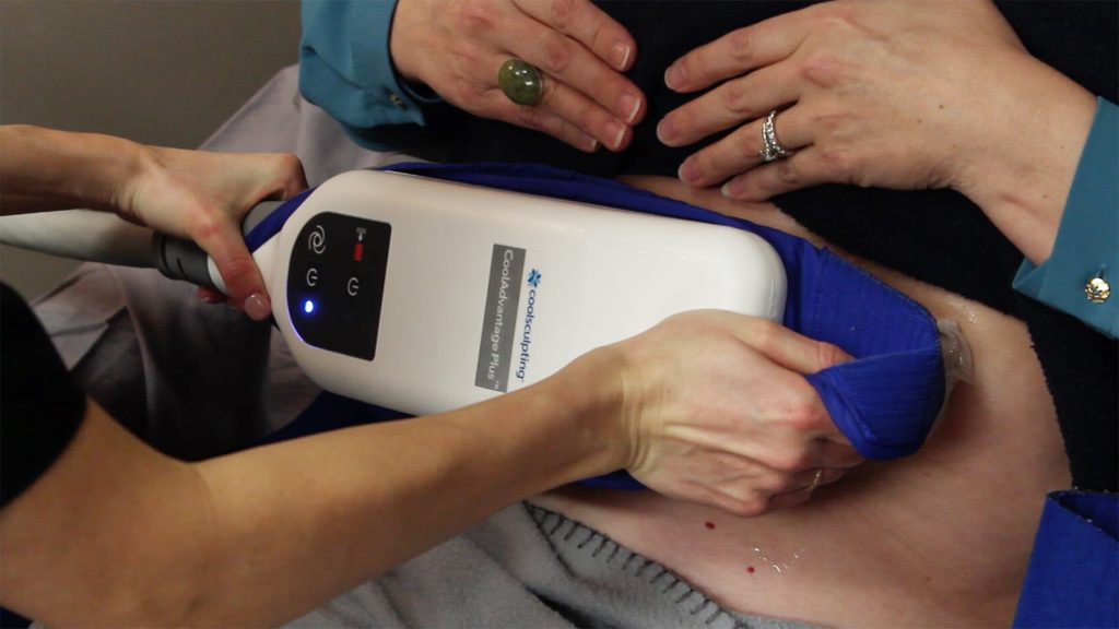 How to Break Through Your Mom-Bod with CoolSculpting