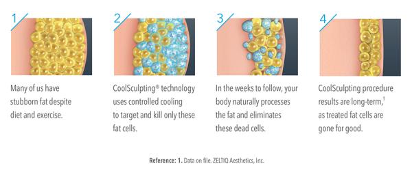 coolsculpting fat