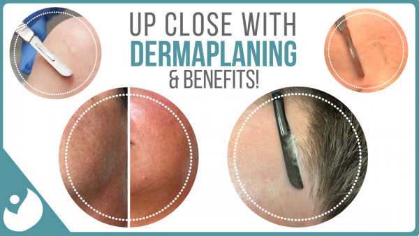 7 Dermaplaning Secrets That No One Told You About
