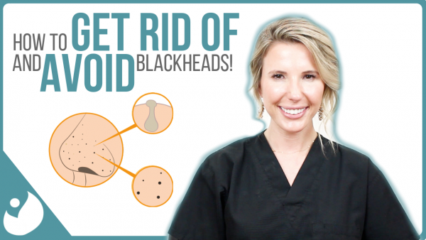How to Get Rid of & Avoid Blackheads