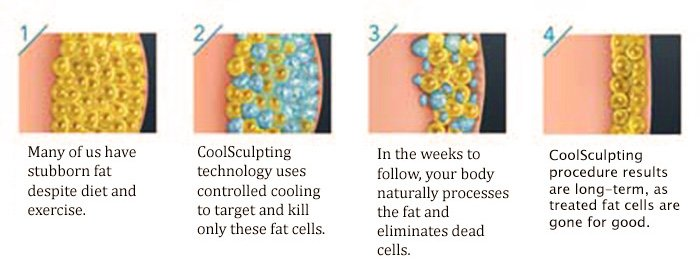 coolsculpting question