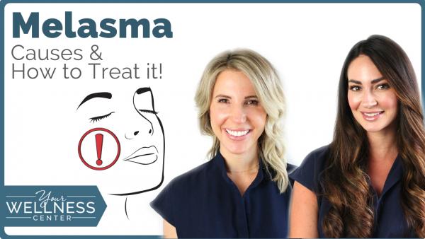 Melasma: Causes and Treatment Options